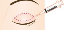 結膜側からのアプローチで、挙筋を折りたたむようにして短くします。