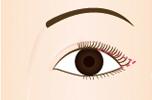 目尻を切開して、上まぶたの白目の部分を引き上げます。