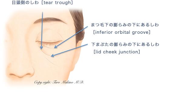 下眼瞼経結膜ハムラ法