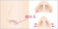 鼻腔内からの切開で、広がった鼻翼を縫い縮めます