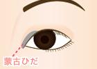 蒙古ひだのかぶさりが強く、目が小さく見える状態。